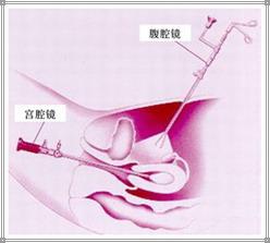 输卵管堵塞的原因是什么