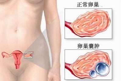 卵巢恶性肿瘤会有什么症状表现?