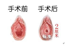 做处女膜修复前需要注意哪些